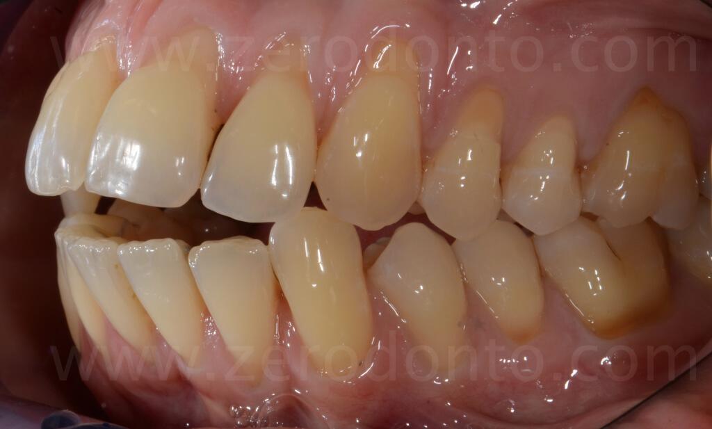 I dental class