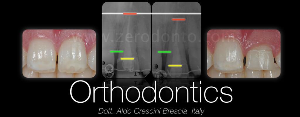 CERUTTI zerodonto 2014 finale.011