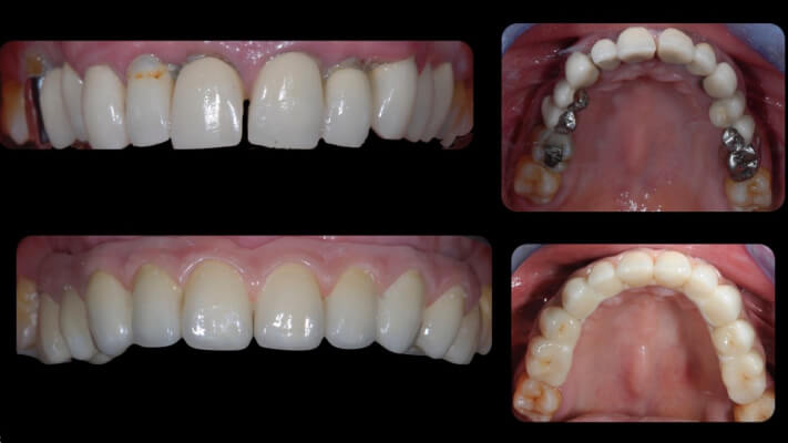 Case 6 | Prosthodontic Award 2015 | Italy