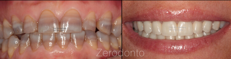 Case 7 | Prosthodontic Award 2015 | Italy