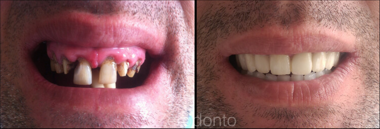 Case 5 | Prosthodontic Award 2015 | Kosovo
