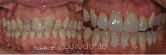Case 1 | Prosthodontic Award 2015 | Italy
