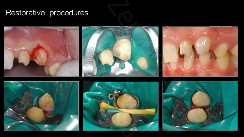 004_Restorative_procedures