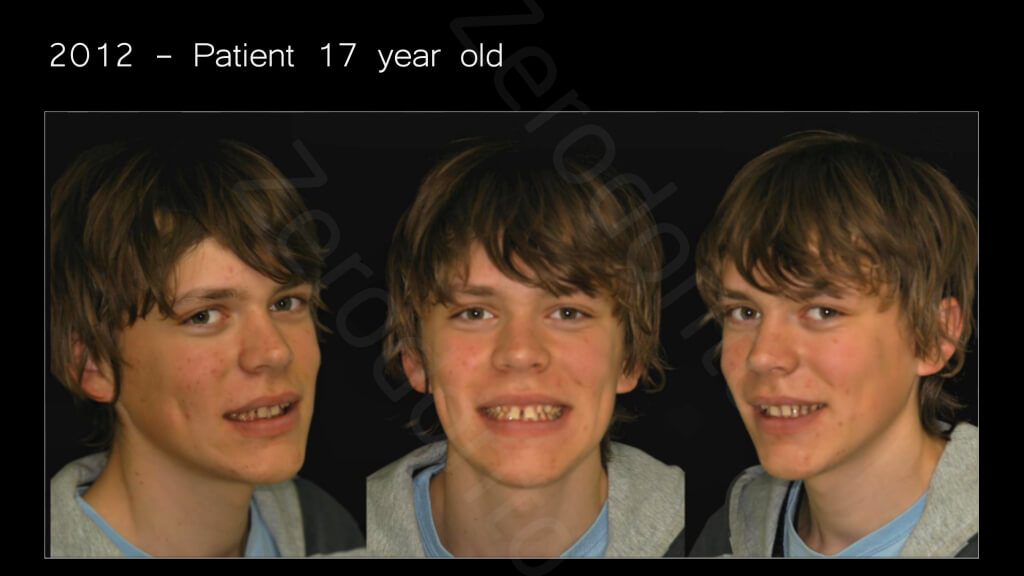 005_Patient_12_years