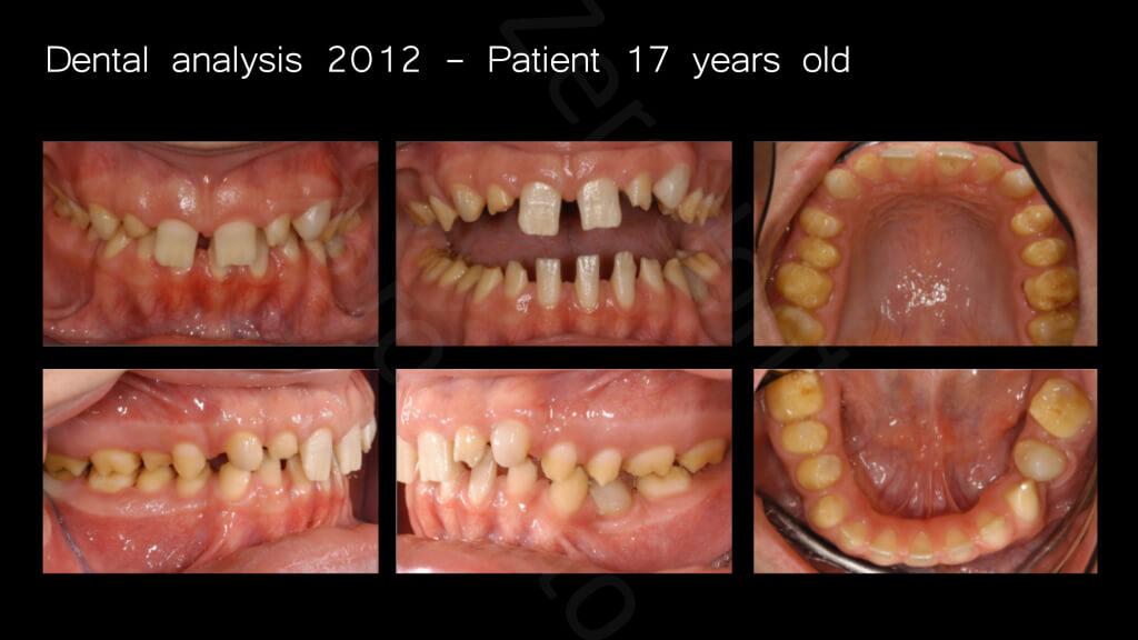 007_dental analysis_2012_17years