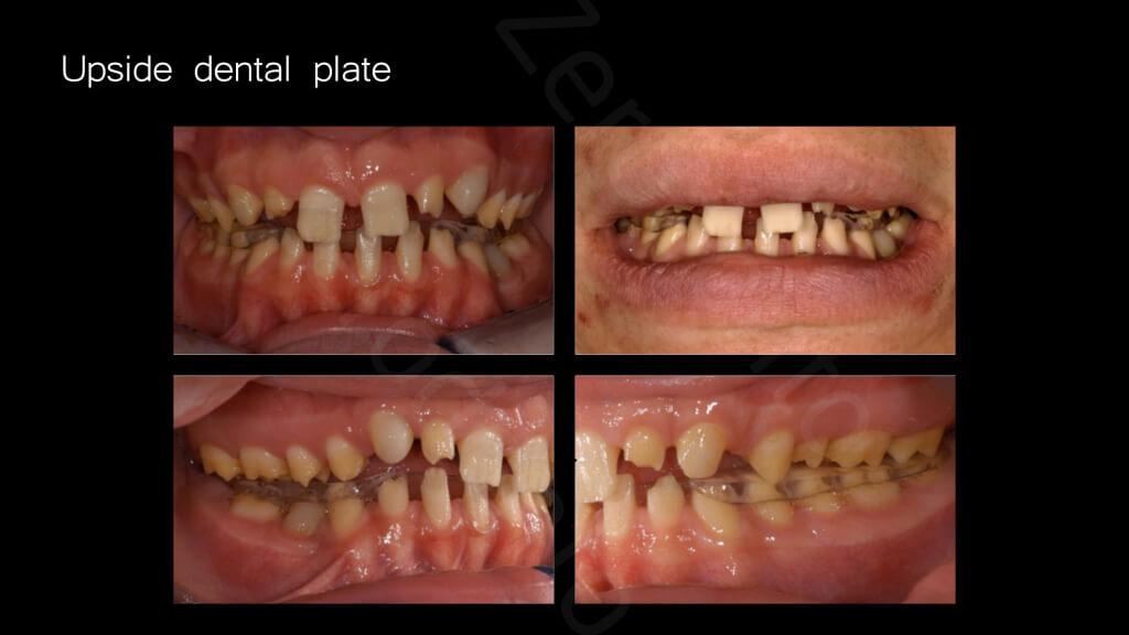 009_upside_dental_plate