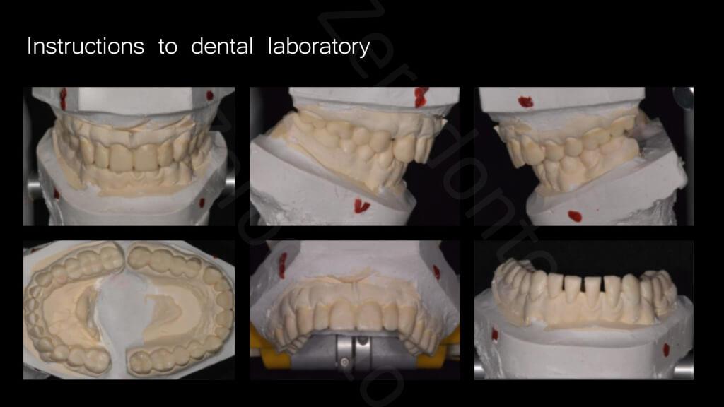 010_instructions_to_dental_laboratory
