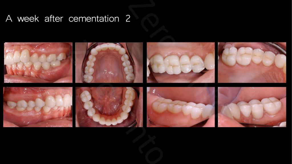 019_A_week_afte_cementation2