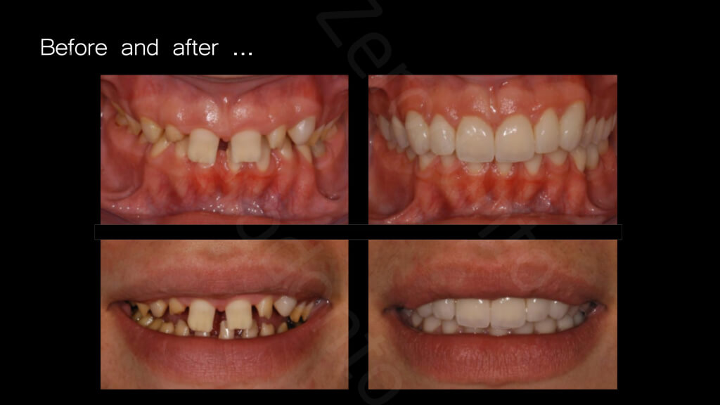 024_Before_and_after