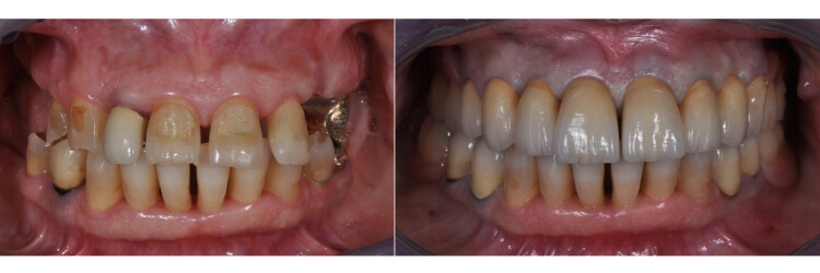 Case 38 | Prosthodontic Award 2015 | Italy