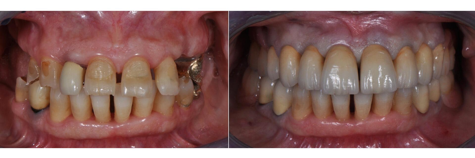 Case 38 | Prosthodontic Award 2015 | Italy