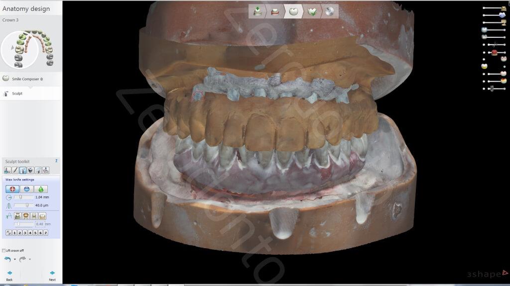 11. Lab scan1