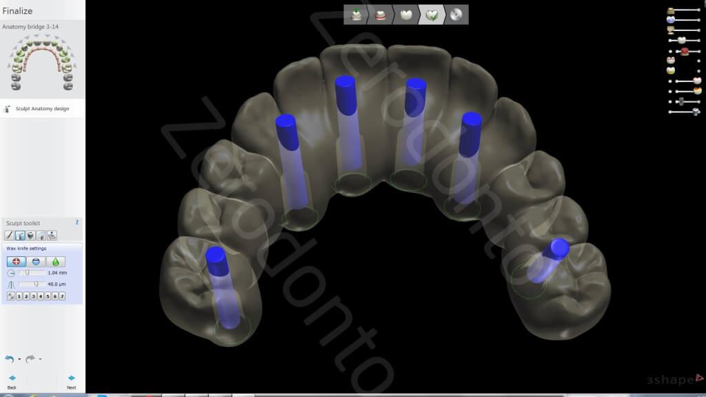 13. Lab scan3