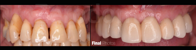 Case 37 | Prosthodontic Award 2015 | Chile