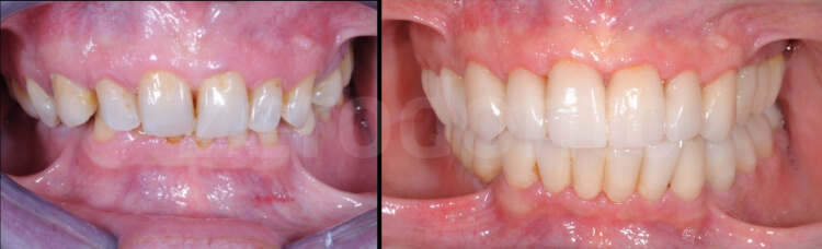 Case 29 | Prosthodontic Award 2015 | Italy
