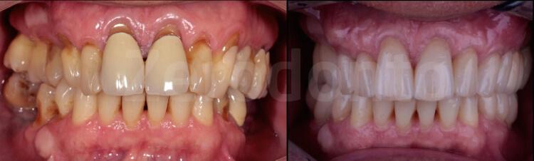 Case 31   Prosthodontic Award 2015   Italy