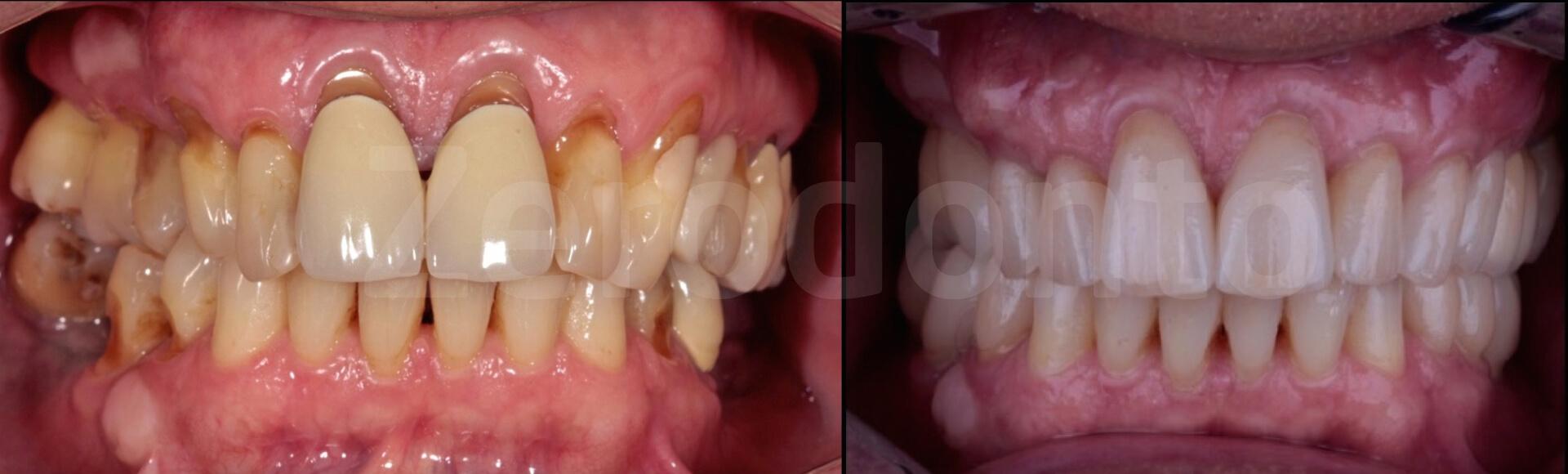 Case 31 | Prosthodontic Award 2015 | Italy