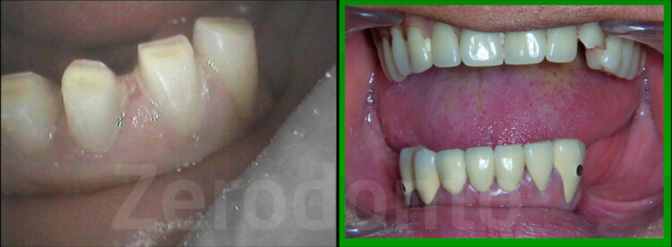 Case 53 | Prosthodontic Award 2015 | Philippines