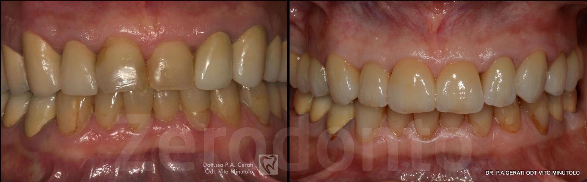Case 32 | Prosthodontic Award 2015 | Italy