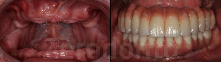 Case 33   Prosthodontic Award 2015   USA