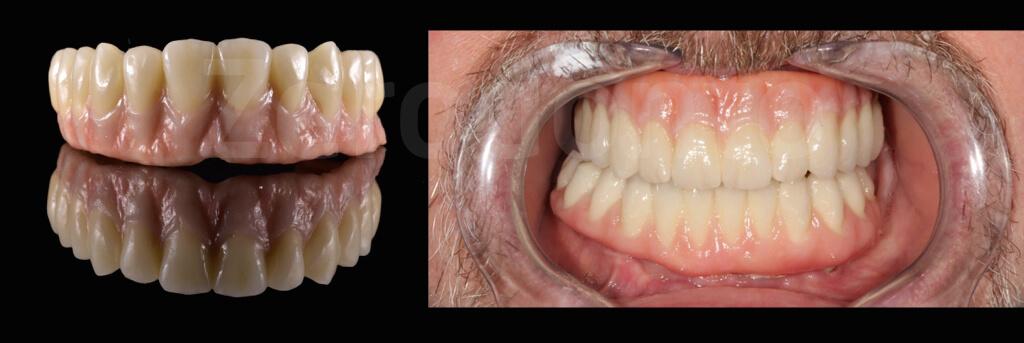 Case 54 | Prosthodontic Award 2015 | Romania