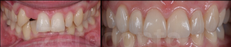 Case 56 | Prosthodontic Award 2015 | Italy