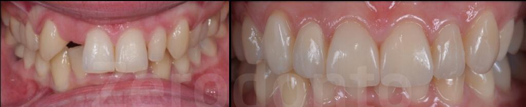 Case 56 | Prosthodontic Award 2015 | Italy