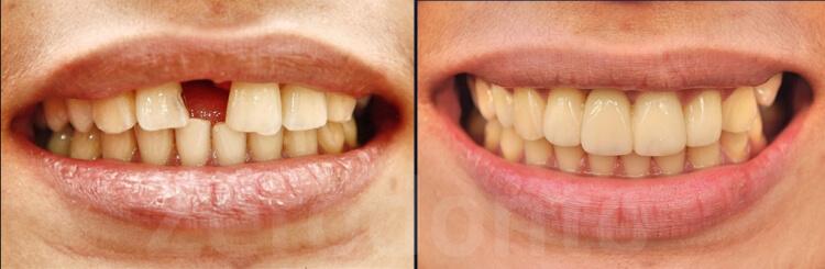 Case 57   Prosthodontic Award 2015   Iran