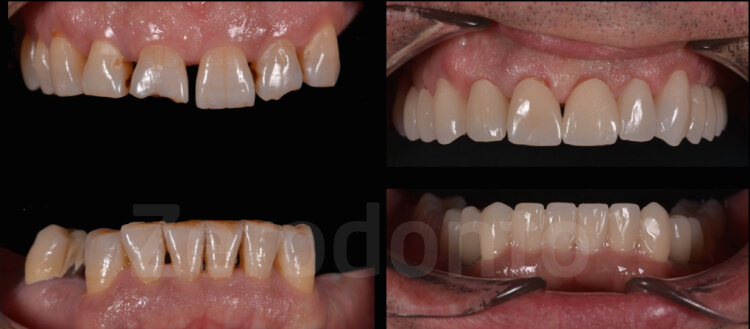 Case 59 | Prosthodontic Award 2015 | Romania