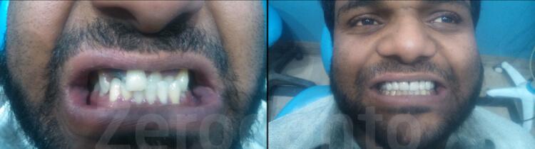 Case 60   Prosthodontic Award 2015   Pakistan