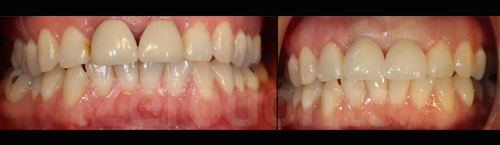 Case 61 | Prosthodontic Award 2015 | USA