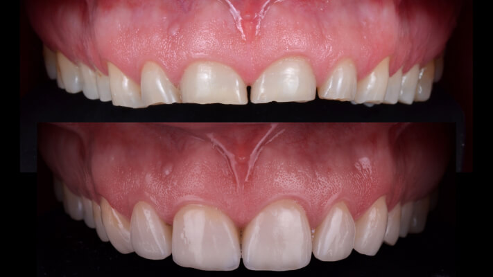 Case 15 | Prosthodontic Award 2015 | Italy