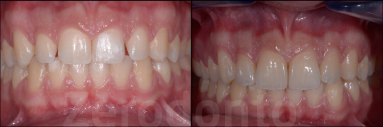 Case 40 | Prosthodontic Award 2015 | Italy