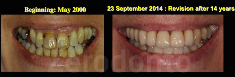 Case 63 | Prosthodontic Award 2015 | Italy