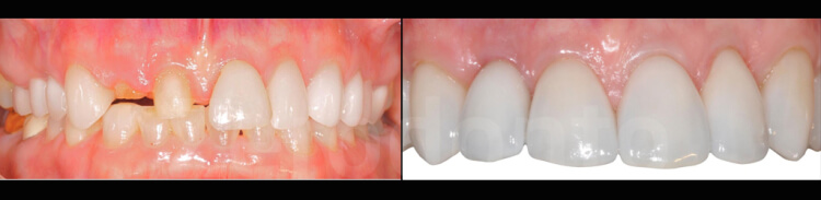 Case 64 | Prosthodontic Award 2015 | USA