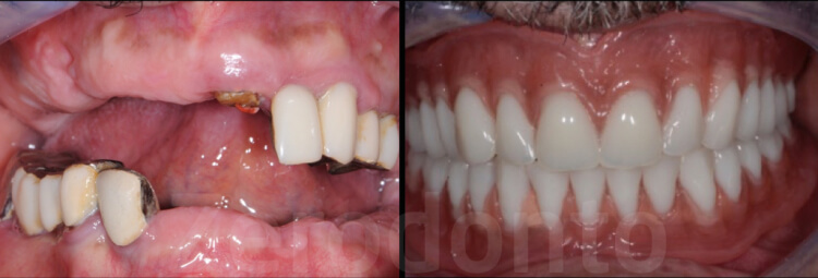 Case 67 | Prosthodontic Award 2015 | Tunisia