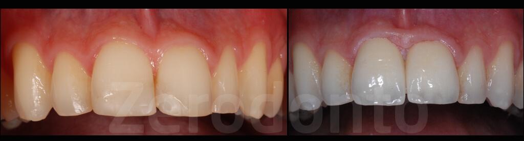 Case 69 | Prosthodontic Award 2015 | Russia