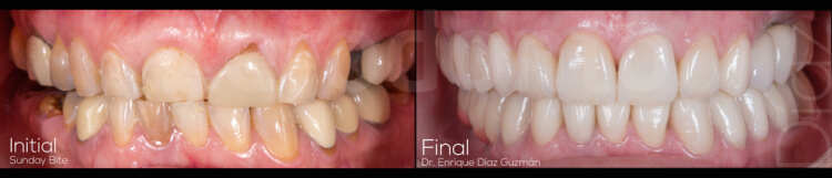Case 70 | Prosthodontic Award 2015 | Mexico