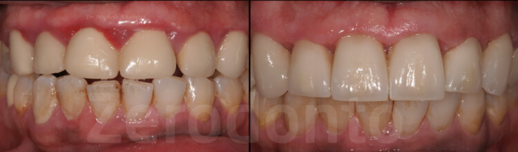Case 41 | Prosthodontic Award 2015 | Lebanon