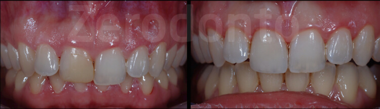 Case 42 | Prosthodontic Award 2015 | Italy