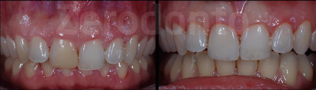 Case 42 | Prosthodontic Award 2015 | Italy