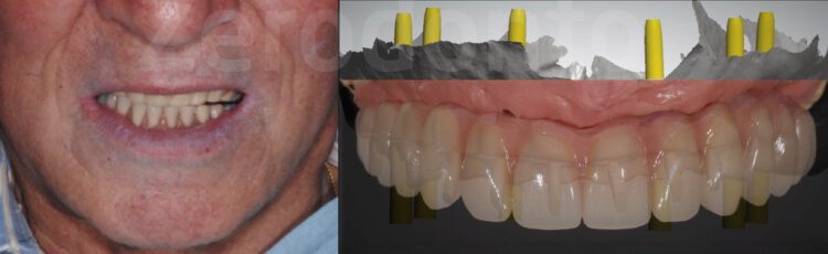 Case 45 | Prosthodontic Award 2015 | Italy
