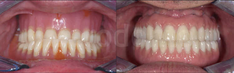 Case 26 | Prosthodontic Award 2015 | Italy