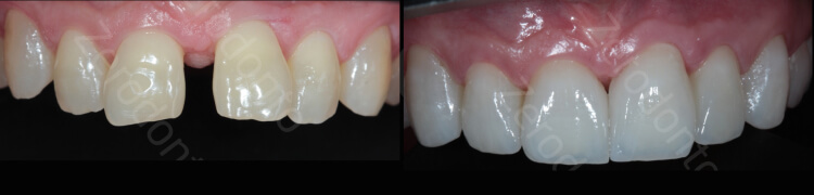 Case 27 | Prosthodontic Award 2015 | Brazil