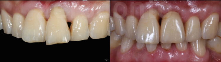 Case 46 | Prosthodontic Award 2015 | Belgium