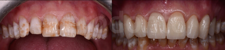 Case 28 | Prosthodontic Award 2015 | Italy