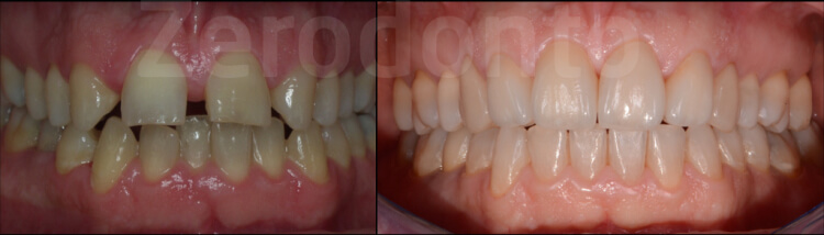 Case 48 | Prosthodontic Award 2015 | Italy