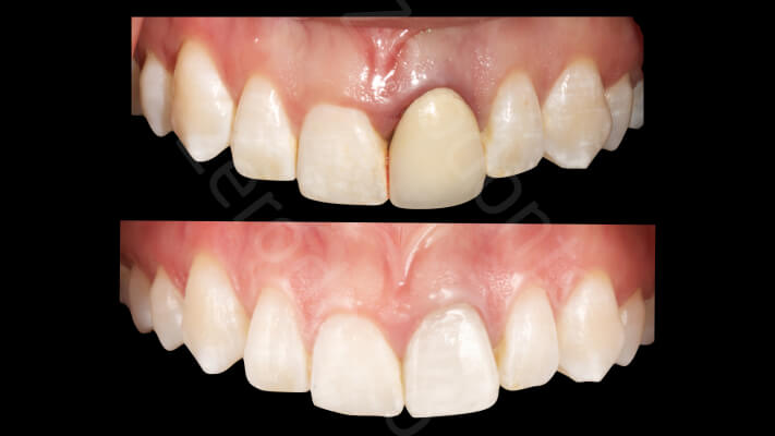 Case 39 | Prosthodontic Award 2015 | Mexico
