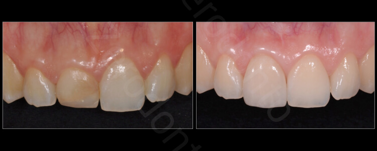 Case 68 | Prosthodontic Award 2015 | Italy