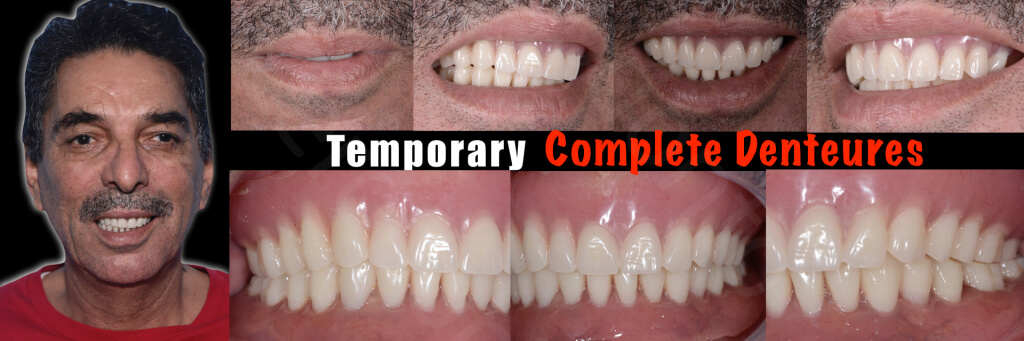 Implant retained Overdentures.004